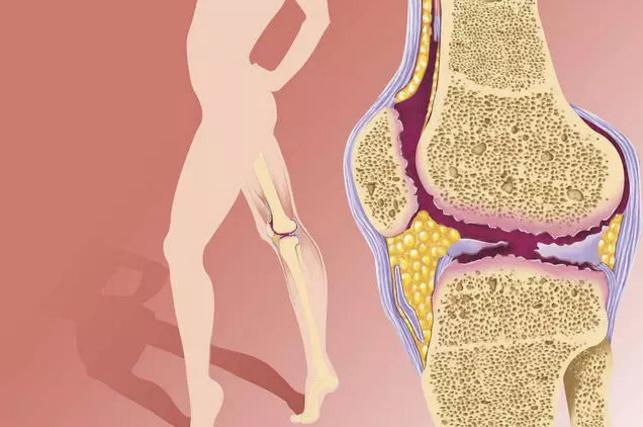 干细胞治疗骨关节炎,修复软骨,告别关节疼痛