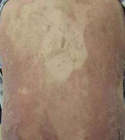 【成功案例】干细胞治疗系统性红斑狼疮