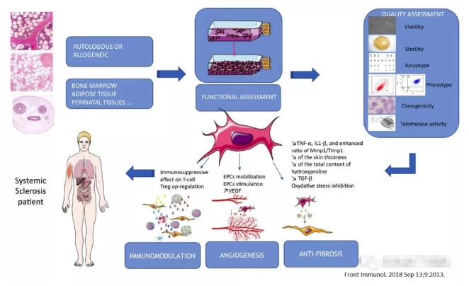 患了系统性硬化病,干细胞治疗安全且有效吗?