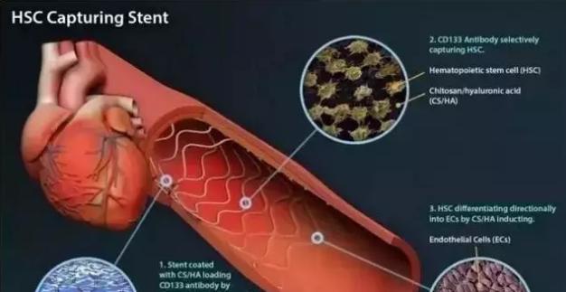 干细胞疗法对什么病有用?可以治愈吗?