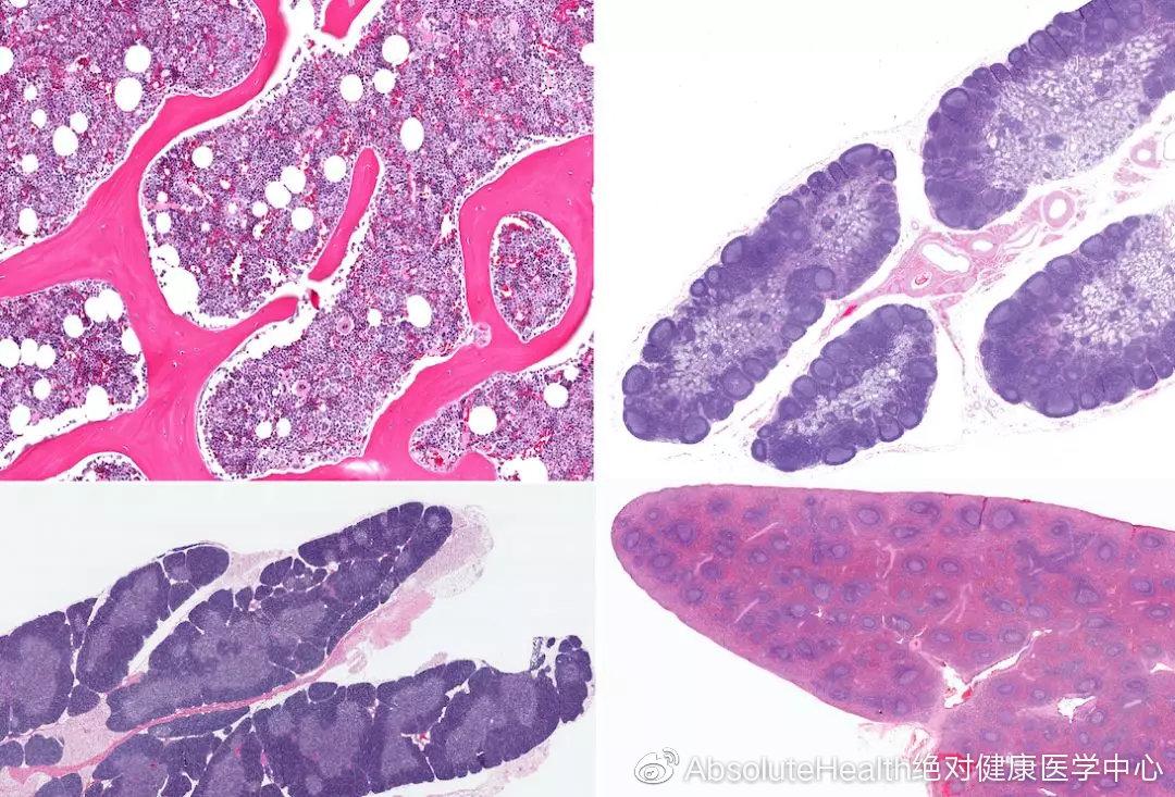 干细胞治疗急性肾衰竭,恢复肾功能